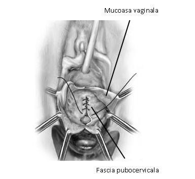 tratamentul prolapsului de șold)